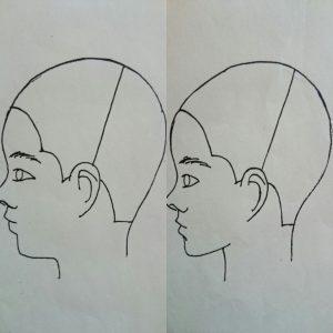顎のライン
